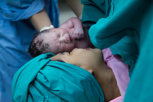 Understanding Caesarean and What to Expect